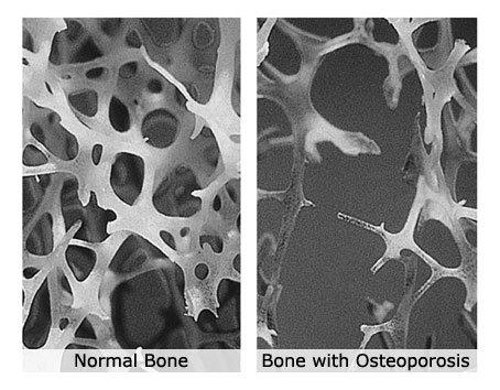 Διάγνωση Οστεοπόρωσης