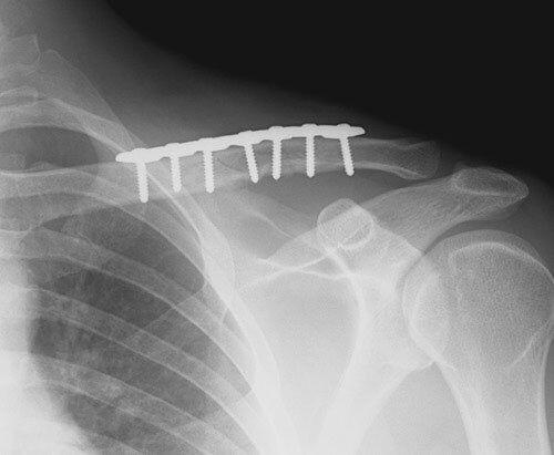 κάταγμα κλείδας χειρουργείο