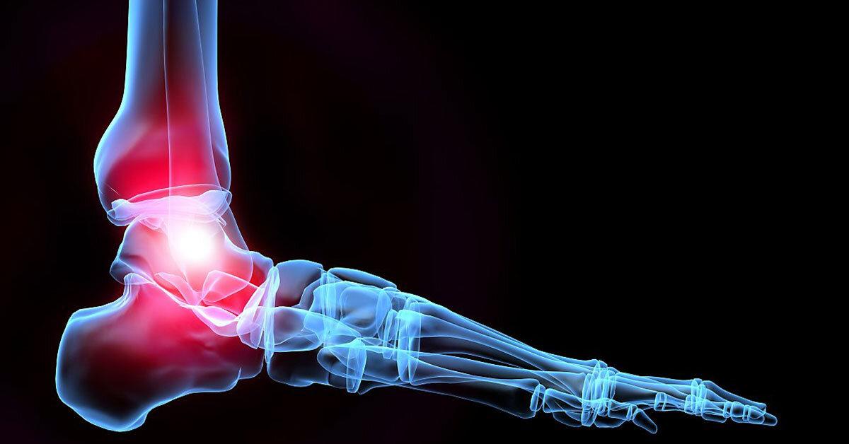 αστράγαλος-τραυματισμός