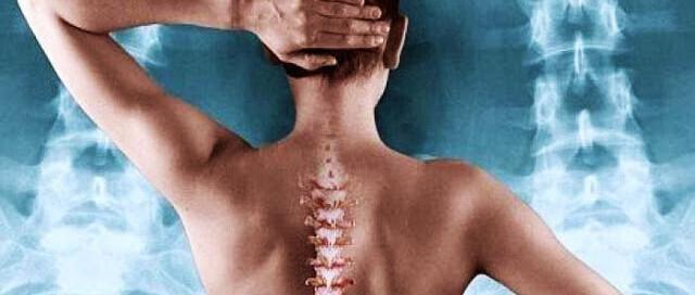 οστεοπόρωση-διαβήτης