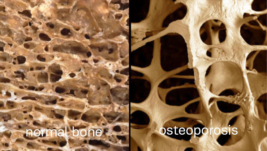 Normal-bone-vs-osteoporosis